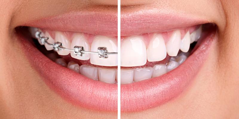 ortodonzia-adulti-zanirato