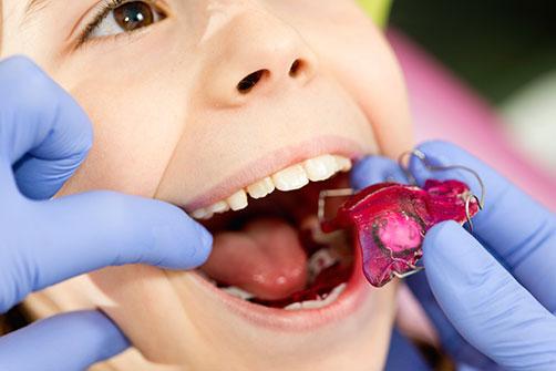 ortodonzia-bambini-2-zanirato