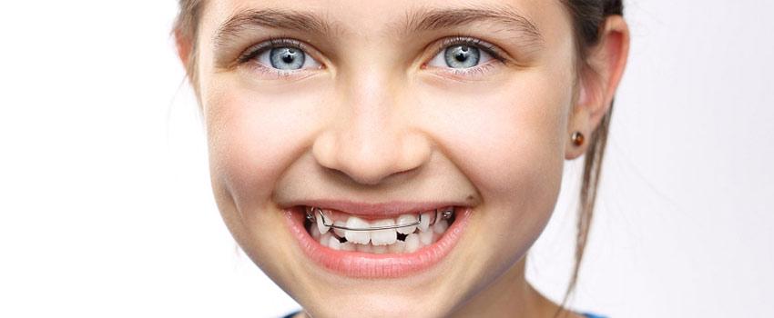 ortodonzia-bambini-zanirato